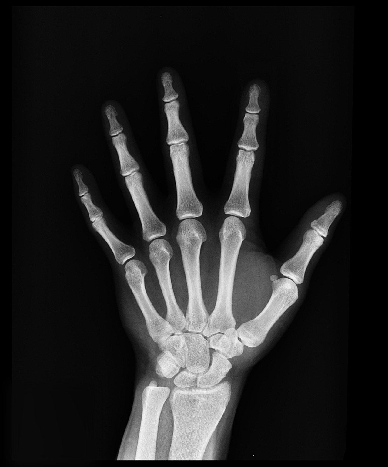 Kilka słów o osteoporozie