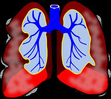 Astma oskrzelowa u dzieci – poważny problem dla najmłodszych